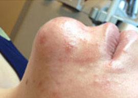 Hydrafacial_Oelige-Haut