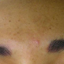 Cosmedicpoint Hyperpigmentierung